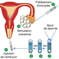 bebe in vitro